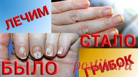 Лечение грибка ногтей народными средствами – самые ...   Понять, что требуется лечение грибка ногтей на руках народными средствами и самые ... Можно ли вылечить грибок ногтя народными средствами?