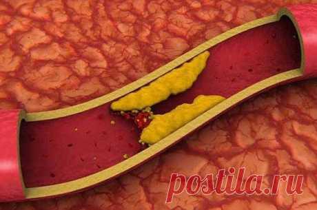 5 естественных способов снизить уровень плохого холестерина за 4 дня / Будьте здоровы