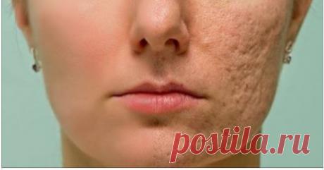 Нанесите это на любой шрам, морщины или пятна у вас на коже и наслаждайтесь тем, как они исчезают за считанные минуты! Даже врачи в шоке!