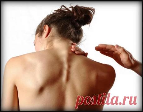 Как убрать вдовий горб (горбик, холку) на шее. Не стоит игнорировать лечение данного дефекта, так как, помимо некрасивого внешнего вида, вдовий холмик оказывает давление на прилежащие ..