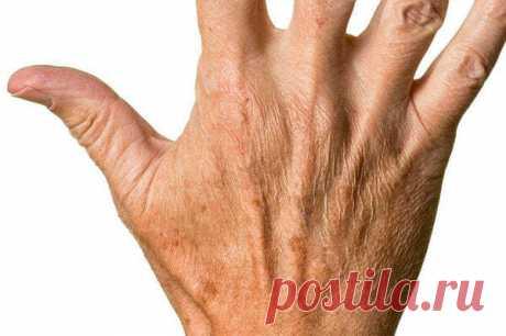 Как избавиться от сухости и пигментации кожи на руках. Рецепт. | Дача, сад, огород, рыбалка, рецепты, красота, здоровье