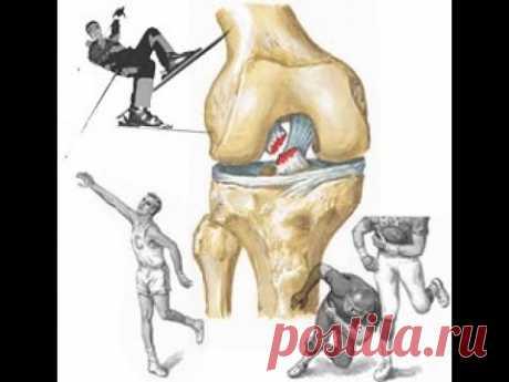 La reconstitución de las articulaciones de las rodillas del Ejercicio y la receta