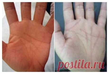 You want to change destiny? Correct lines on a hand