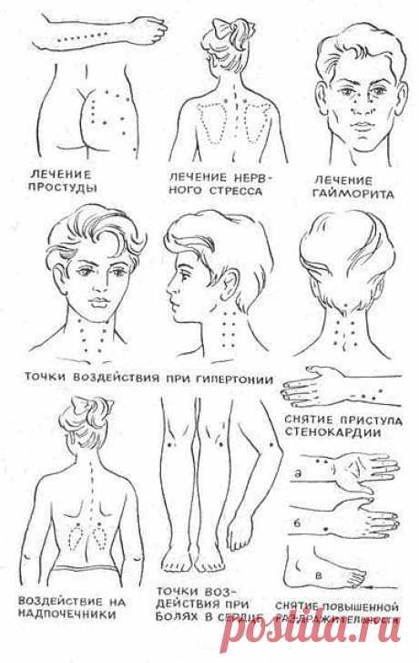 Cнятие боли,нажимая на точки тела.