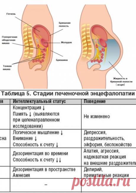 Асцит брюшной полости: лечение, причины, симптомы, асцит при онкологии | Азбука здоровья