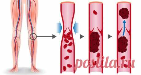 How to prevent thrombosis: 8 products for blood fluidifying
