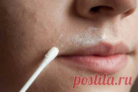 Как быстро и безболезненно избавиться от усиков над губами