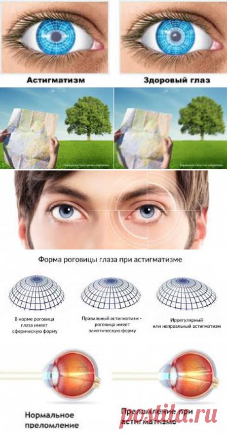 Астигматизм – это разновидность аномалии рефракции глаза, которая характеризуется различной силой преломления лучей по двум главным меридианам. У пациента зрение становится нечетким в результате искривления роговицы, реже – хрусталика.