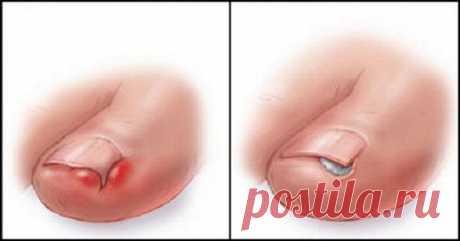 средства для лечения вросших ногтей дома!