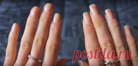 Всего 3 ингредиента помогут быстро отрастить крепкие и длинные ногти! — СОВЕТ !!!