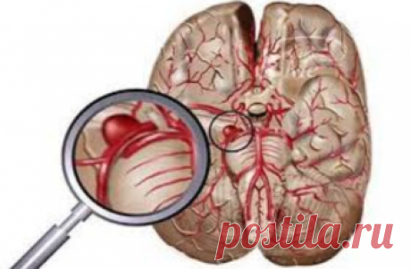 Limpiamos los vasos del cerebro