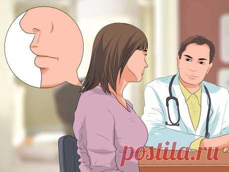 Как остановить носовое кровотечение Носовые кровотечения часто возникают неожиданно. Иногда это происходит из-за вдыхания сухого воздуха на протяжении длительного времени. Сухая слизистая оболочка легче подвергается травмированию. Носовое кровотечение возникает в результате п...