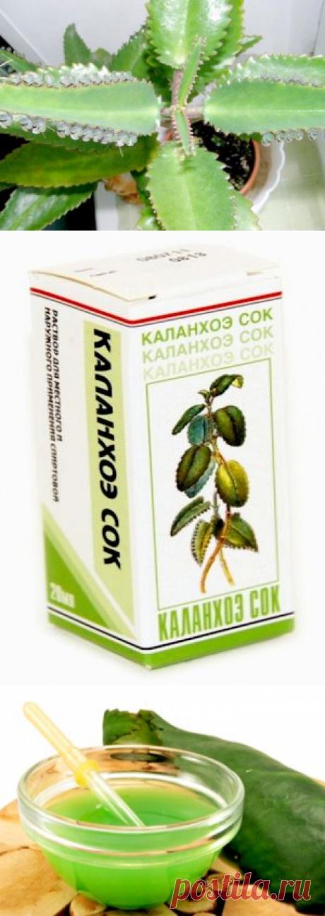 Каланхоэ - лечебные свойства в народной медицине.