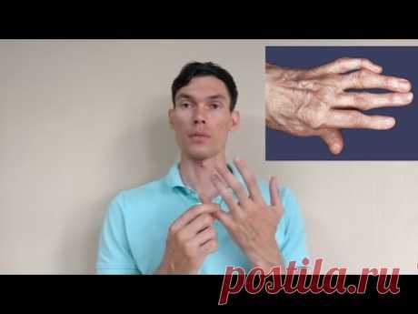 АРТРОЗ ПАЛЬЦЕВ РУК РАЗРАБОТКА arthrosis of the fingers