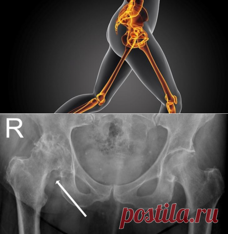 Hip pains: main reasons and methods of treatment