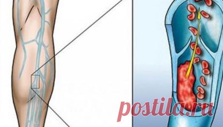 Лечебные настои для улучшения кровообращения в ногах / Будьте здоровы