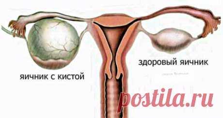 Образование кист яичников