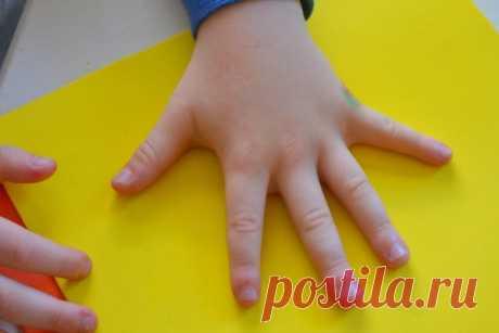 Бородавка на руке у ребенка, как вывести чем лечить на пальце