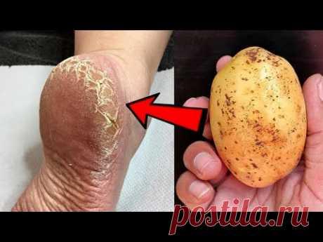 Устраните трещины на пятках и получите домашнее средство для белых и гладких ног Magic Cracked Heels