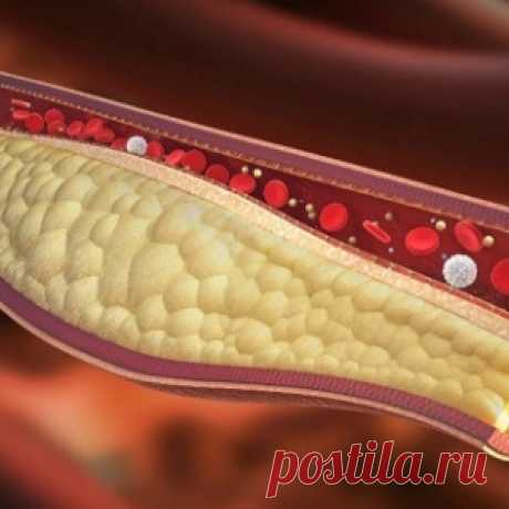 Only 1 glass of this drink a day will help to clear vessels of cholesteric plaques