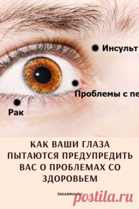 Диагностика по глазам. 8 признаков, посредством которых Ваши глаза предупреждают о проблемах со здоровьем