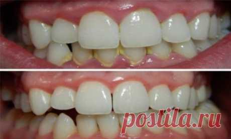 Как удалить зубной налет за 5 минут естественным способом без визита к стоматологу! | Golbis