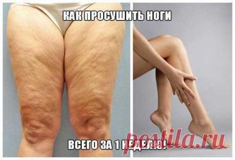 КАК ПРОСУШИТЬ НОГИ  ВСЕГО за 1 НЕДЕЛЮ!   Девочки, весь жир с ног можно убрать в любое время года и в любом возрасте! Особенно, когда хочется ходить в юбочках)) Потрясающе простой рецепт буквально за неделю убрал все мои недостатки!! Как? Да очень просто! :)  Читать продолжение: ok.ru/group/52250343178329