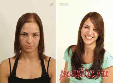 Система замещения волос: видео-инструкция как сделать безоперационную процедуру своими руками, фото и цена