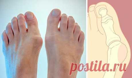 Что нужно знать о шишке на ноге