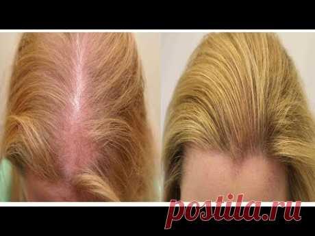 Лучшее средство от выпадения волос - YouTube