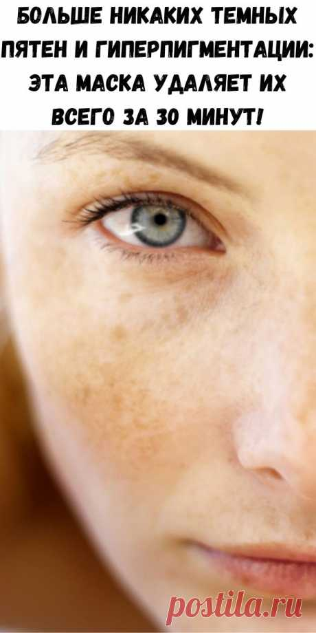 Больше никаких темных пятен и гиперпигментации: эта маска удаляет их всего за 30 минут! - Советы для женщин