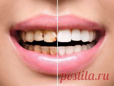 """""""Для коронок придётся стачивать родные зубы, но этот способ их спасёт! Ноу-хау в стоматологии. """" 3 простых шага, и Ваша улыбка станет неотразимой  ᅠᅠᅠᅠᅠᅠᅠᅠᅠᅠᅠᅠᅠᅠᅠᅠᅠᅠᅠᅠᅠᅠᅠᅠᅠᅠᅠᅠᅠᅠᅠᅠᅠᅠᅠᅠᅠᅠᅠᅠᅠᅠᅠ  ᅠᅠᅠᅠᅠᅠᅠᅠᅠᅠ салаты без майонеза"""