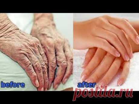 Сделайте руки моложе на 10 лет - Удалите морщины с рук - Уход за кожей