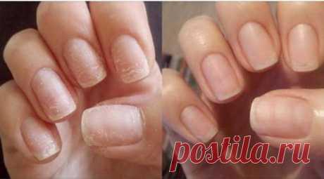 Как восстановить ногти после наращивания, а также укрепить ногтевую пластину | На каблуке | Яндекс Дзен