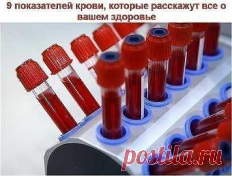 """Сохраните, чтобы не потерять! 9 показателей крови, которые расскажут все о вашем здоровье. Итак, что же говорит нам наша кровь? Анализ крови мы сдаем практически при любом заболевании. И грамотный врач непременно отправит вас первым делом """"на кровь"""". Для общего анализа кровь берется или из вены, или из пальца. И первичный анализ можно сдавать не натощак. Но для развернутого есть нельзя ни в коем случае! Помните это! Причина такого требования проста: любая пища изменит ваш ..."""