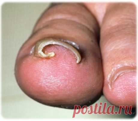 Лечение вросшего ногтя народными средствами | Народная медицина