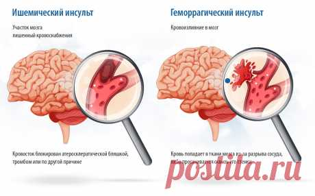 Антитромботические препараты - угроза кровотечений | Здоровое сердце и сосуды | Яндекс Дзен
