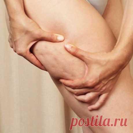 4 эффективных способа борьбы с целлюлитом