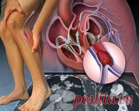 Причины тромбоза и специальные упражнения По каким причинам развивается тромбоз нижних конечностей? Они могут быть объективными, связанными с образом жизни, и персональными, вызванными состоянием организма. Зная эти причины, можно предупредить возникновение данного опасного заболевания. Также помогут специальные упражнения.