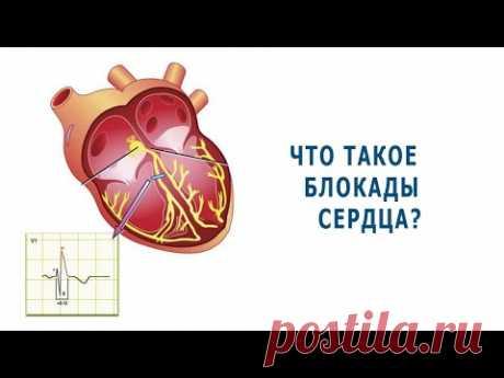 Что такое блокады сердца?