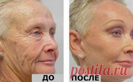 Лицо 64-летней женщины оставалось без морщин благодаря одному единственному ингредиенту