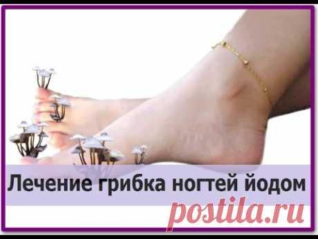 Грибок ногтя на большом пальце ноги лечение народными средствами | Чистая кожа Популярные народные средства для лечения грибка ногтей  Пожелтевшие или потемневшие ногти на ногах – первый признак ногтевого грибка, который мы попробуем вылечить с помощью народных средств в домашних условиях. Онихомикоз – инфекционное заболевание, которому подвержены люди различных возрастных категорий. На ранних стадиях сопровождается шелушением и деформацией ногтей, появлением трещин. Со вр...