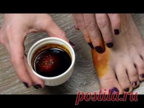 Народное средство для лечения косточки на большом пальце ноги.