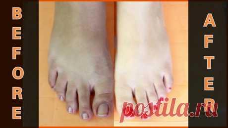 Отбеливающий педикюр для кожи - Вам нужно всего 30 минут, чтобы получить прекрасные и красивые ноги - Полезные советы красоты