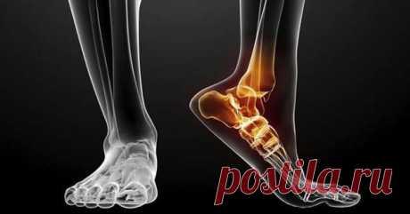 Боль в лодыжке: причины возникновения и способы лечения   Люблю Себя