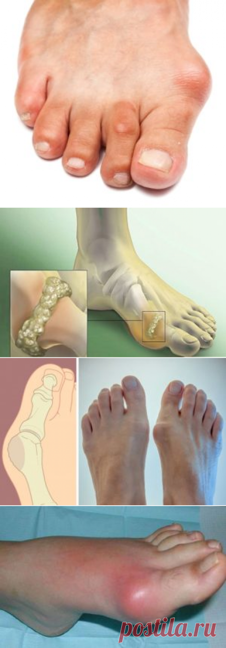 Treatment of gout folk remedies in house conditions
