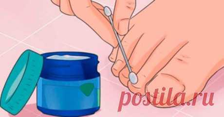 Эти 6 мощных средств устранят даже самый запущенный грибок ногтей! Избавиться от надоедливого грибка ногтей можно очень просто, если знаешь эти рецепты! Грибок ногтя — это тип грибковой инфекции, которая возникает, когда