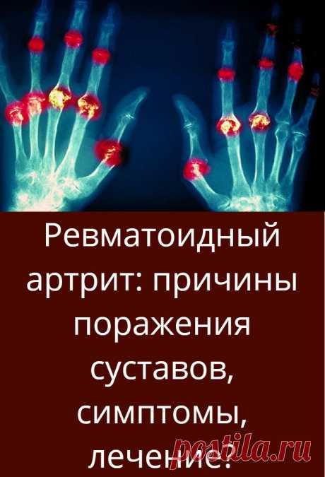 Ревматоидный артрит: причины поражения суставов, симптомы, лечение?