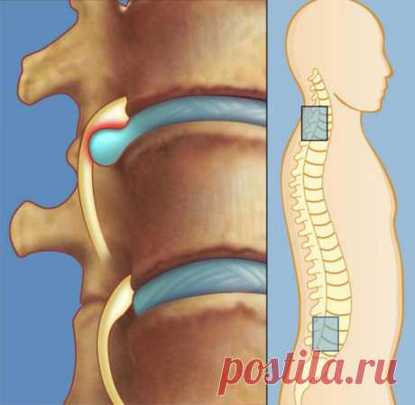 Лечение межпозвоночной грыжи без лекарств и операции: упражнения для спины от Шамиля Аляутдинова Словосочетание «межпозвоночная грыжа» на слуху в наши дни. Чтобы понять, что означает это определение, нужно обратиться к анатомии. Межпозвоночные диски — это своего рода прокладки между позвонками, о…