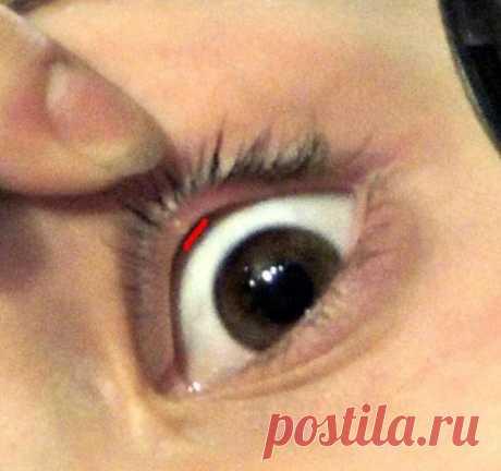 Причины возникновения пузырьков на веках глаз — Всегда в форме!
